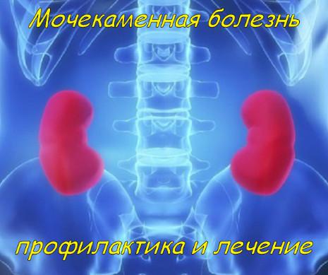 Мочекаменная болезнь профилактика и лечение