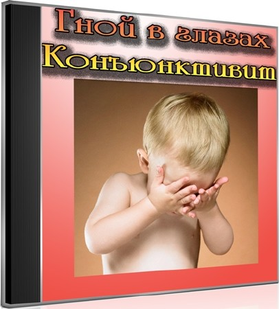 Гной в глазах. Конъюнктивит (2012) DVDRip