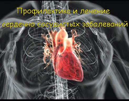 Профилактика и лечение сердечно сосудистых заболеваний (Видеокурс)