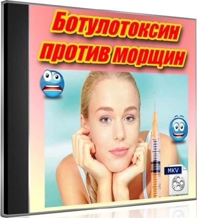 Ботулотоксин против морщин (2012) DVDRip