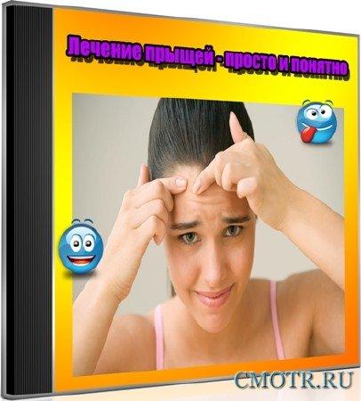 Лечение прыщей - просто и понятно (2013) DVDRip