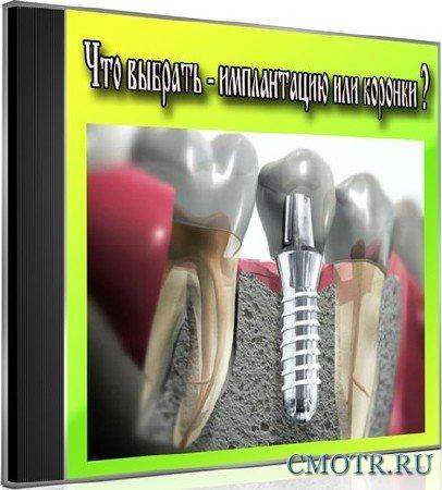 Что выбрать - имплантацию или коронки (2013) DVDRip