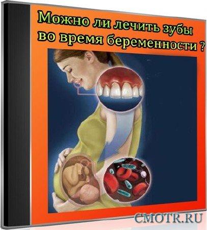 Можно ли лечить зубы во время беременности (2013) DVDRip