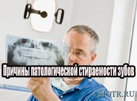 Причины патологической стираемости зубов (2013) DVDRip